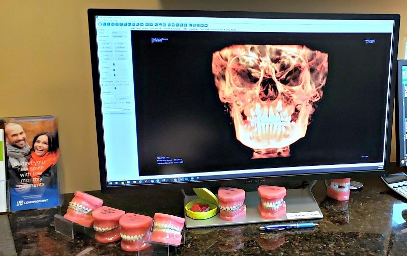 3D xray of Kaylee's head